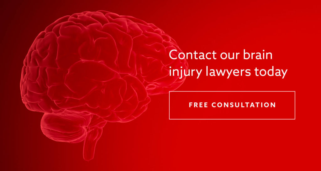 "A CGI image of a brain with the text ""Contact our brain injury lawyers today"" superimposed"